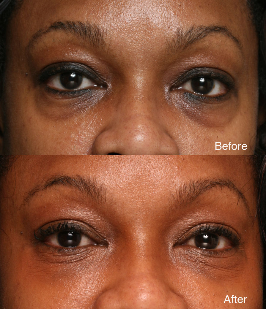 Dark Circles Casy Study Examples - Before & After   LidLift