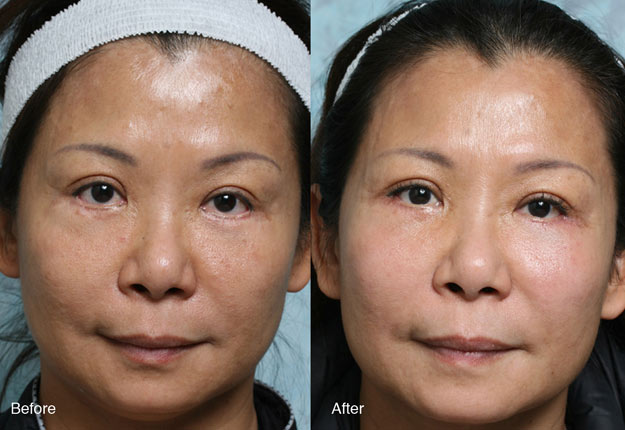 Fixing Botched Lower Eyelid