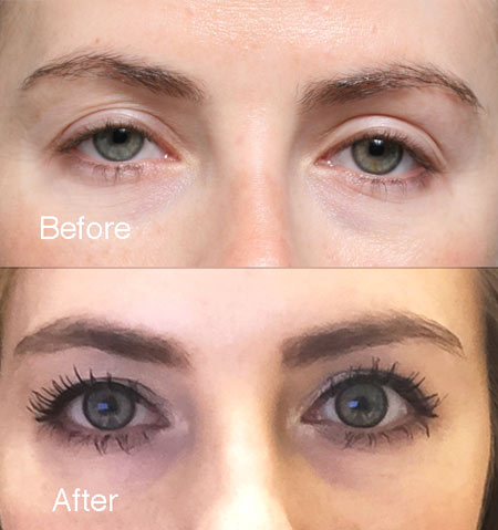 Fixing-upper-eyelids-1