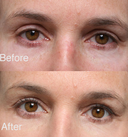 Fixing Botched Upper Eyelid beverly hills