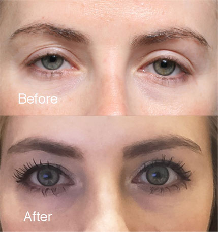 Ptosis Case Study Examples Droopy Eyelids Lidlift