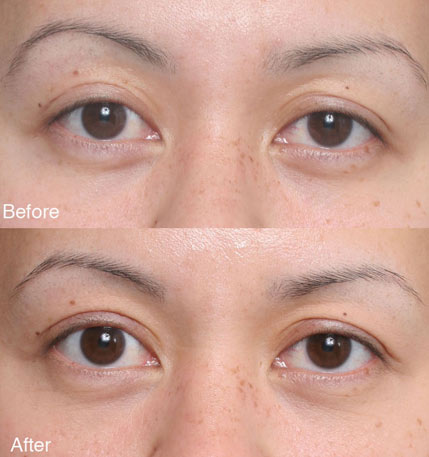 ptosis Beverly Hills patient 4