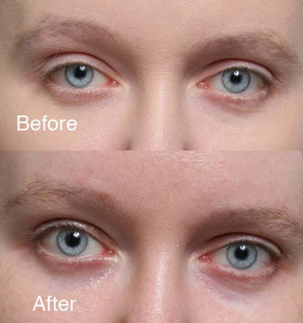 ptosis Beverly Hills patient 5