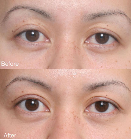 ptosis Beverly Hills patient 6